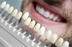 cosmetic dentistry shade matching