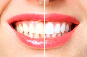 Before and after picture of teeth whitening in Plymouth