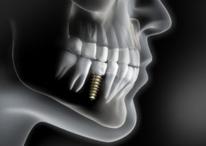 Dental implant in mouth of patient with bruxism in Plymouth